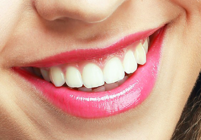 teeth whitening and hygiene