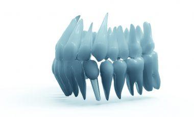 teeth-2833417_1280