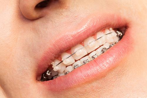 dentists in Gwynedd Dolgellau
